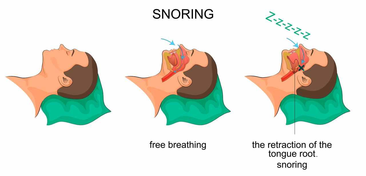 Best Earplugs For Snoring Spouse 4