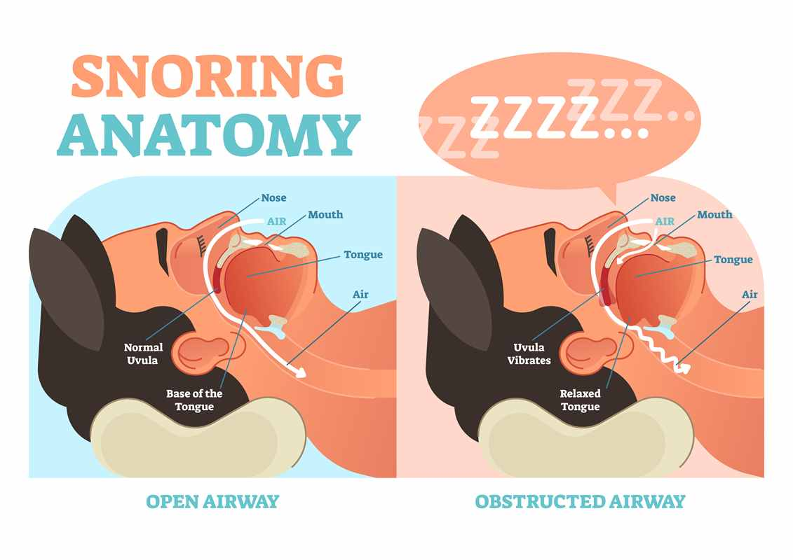 Snoring anatomy