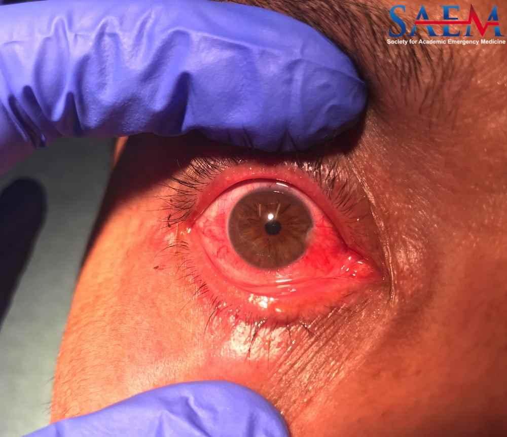 eye injury2